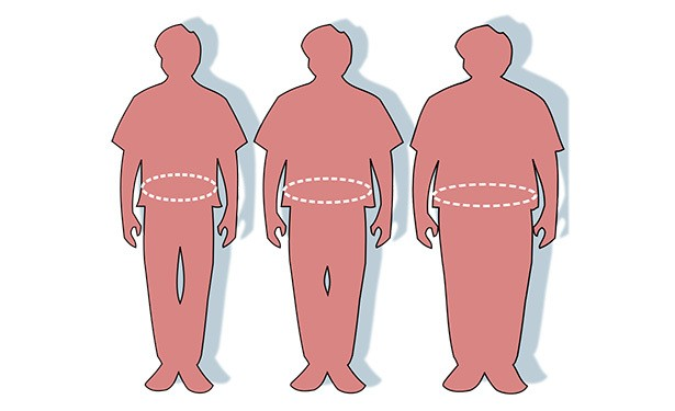 The Misguided Logic of Deporting Fat People