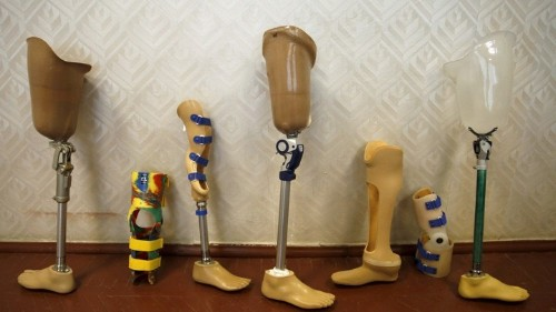 3-D Printing a Better Prosthetic