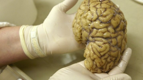 In the Brain, Memories Are Inextricably Tied to Place