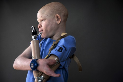Albino Children in Tanzania Targeted by Body Part Hunters
