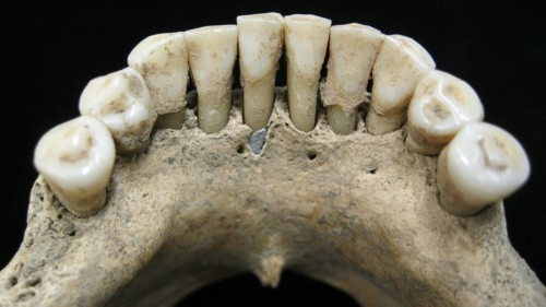 The Woman With Lapis Lazuli in Her Teeth