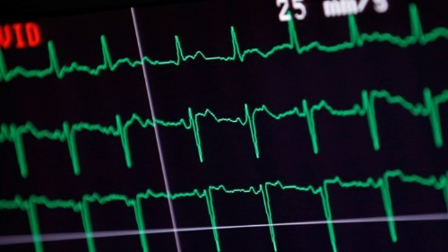 Smartwatches Are Changing the Purpose of the EKG