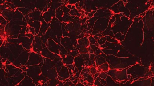 Do Adult Brains Make New Neurons? A Contentious New Study Says No