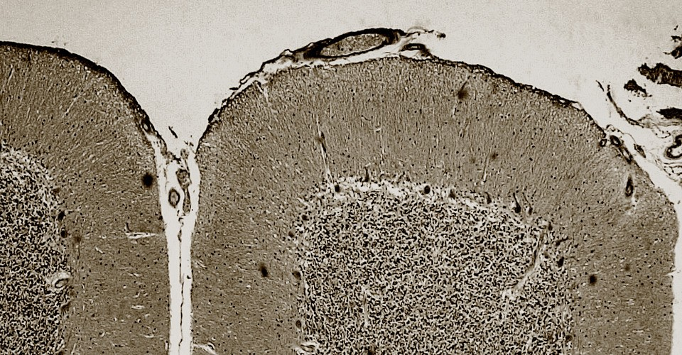 The Cerebellum Isn't What We Thought