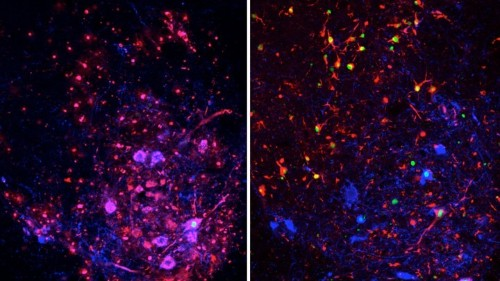 A New Understanding of Inflammation in the Spine