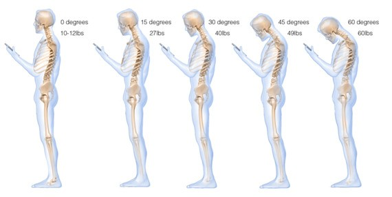 What Texting Does to the Spine