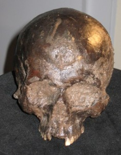 Archaeologists Peered Into Ancient Human Skull and Saw Something 'Unlike Anything I Had Seen Before'