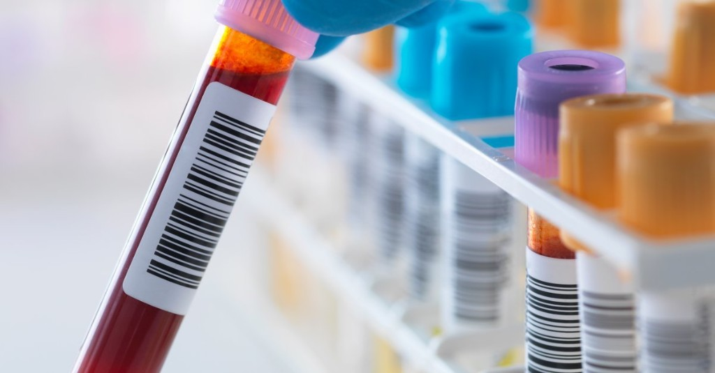 What Your Blood Tells You About Cancer