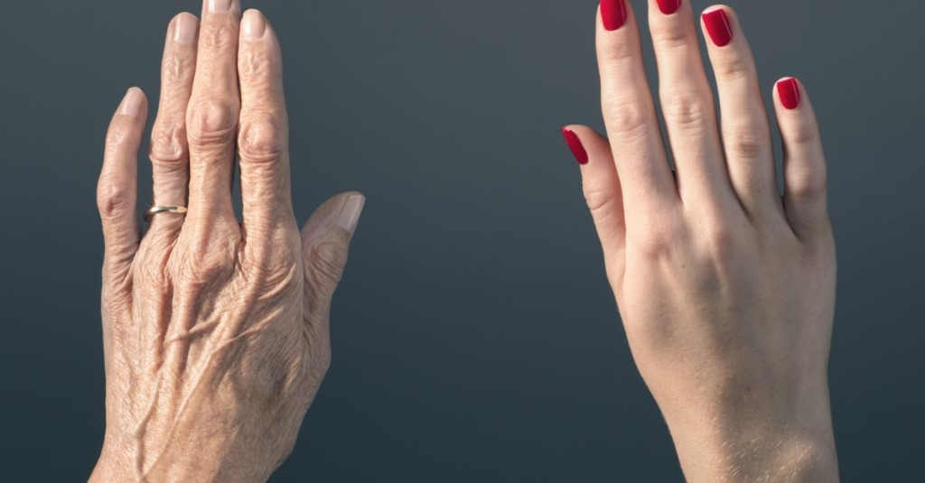 The Gene That Makes You Look Older Than You Are