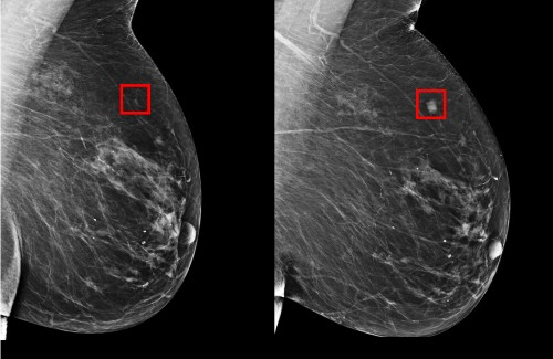 MIT CSAIL's AI can predict the onset of breast cancer 5 years in advance