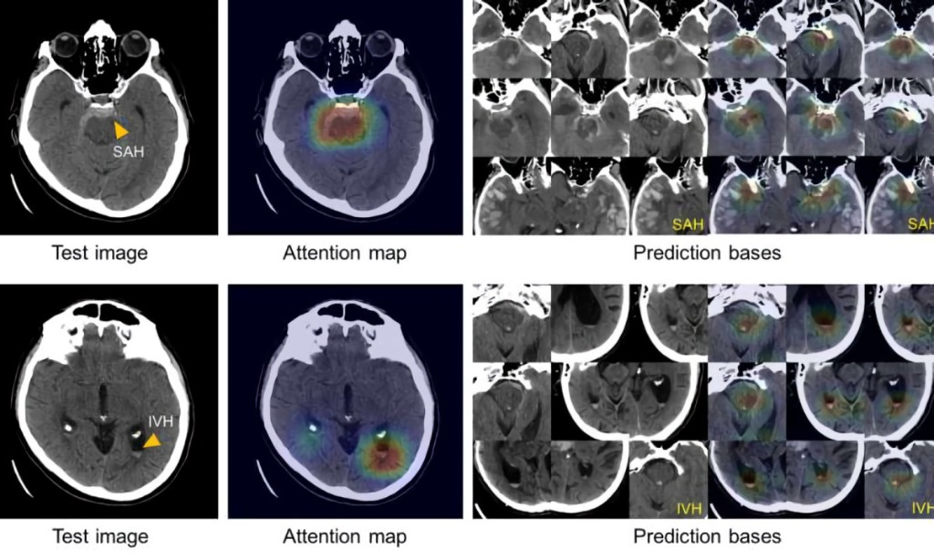 Massachusetts General's AI can spot brain hemorrhages as accurately as humans