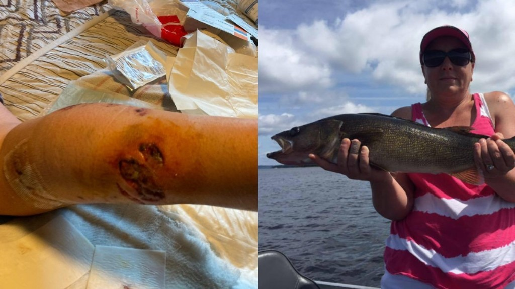 Giant Fish Pulls Woman Under, Tears Chunk Out of Her Leg at Lake Resort