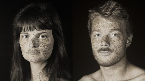 this photographer makes a good case for wearing sunscreen forever