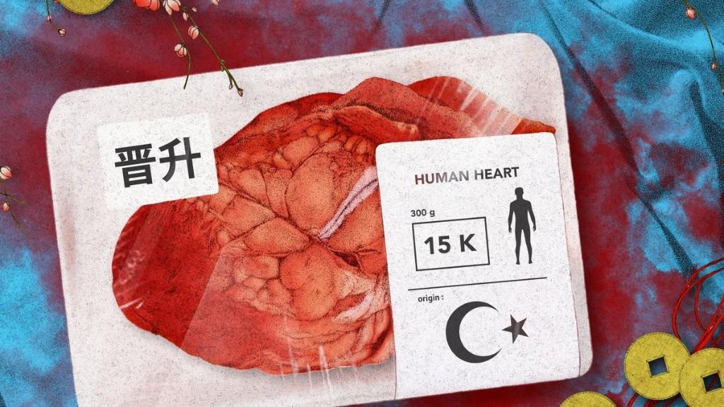 La Chine vend les organes de ses prisonniers Ouïgours aux riches