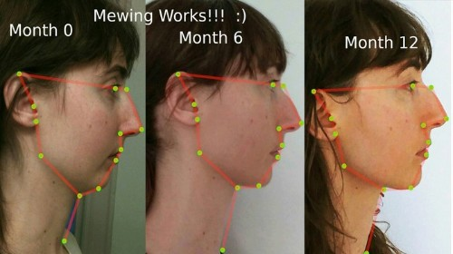 Mewing Is the Fringe Orthodontic Technique Taking Over YouTube