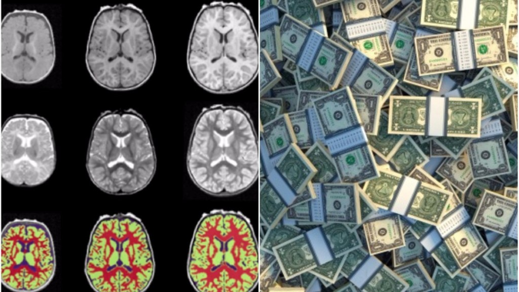 The Science of How Poverty Harms the Brain