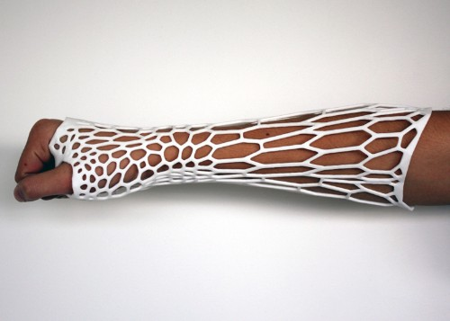 3D-printed 'Cortex' cast concept puts a modern spin on bone fracture treatment