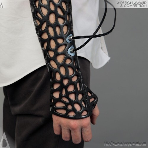 3D-printed cast concept uses ultrasound to heal broken bones
