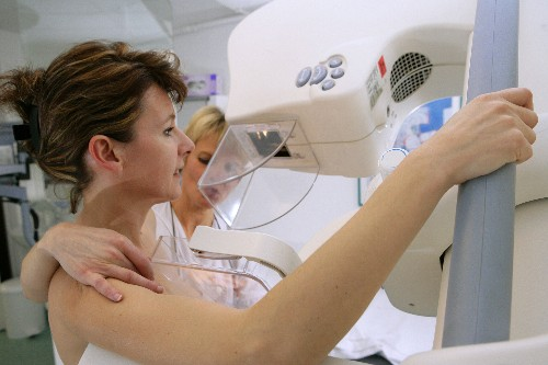 AI can now outperform doctors at detecting breast cancer. Here's why it won't replace them.