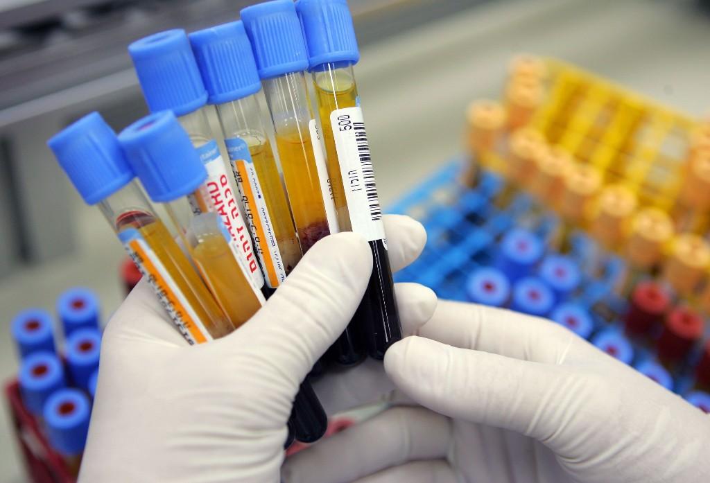 The CDC has begun testing blood for immunity against coronavirus