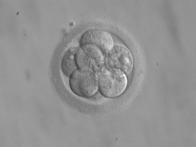 FDA examines the science of making babies from three parents' embryos