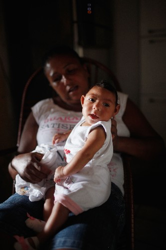 Zika linked to more birth defects than just microcephaly