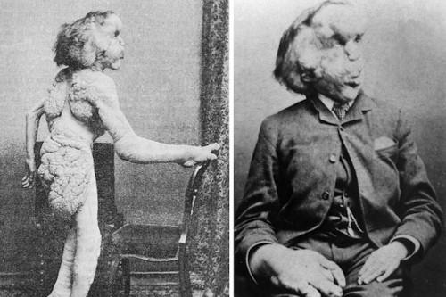 Using the Elephant Man's skeleton to unlock medical mysteries