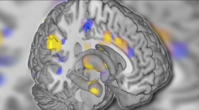 Researchers discover brain scan signature that can determine when people feel pain