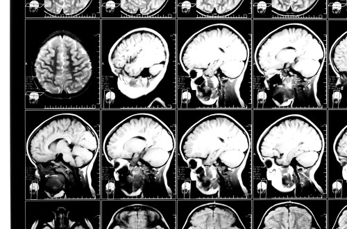 Scanning felons' brains could help predict whether they'll reoffend