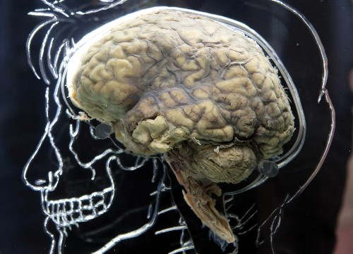 Alzheimer's may have been transmitted via injections, researchers say