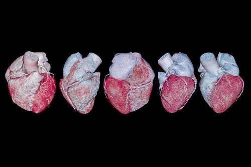 I thought my heart attack risk was low. A coronary calcium scan told me otherwise.