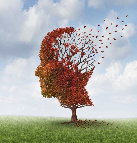 MIT scientists find evidence that Alzheimer's 'lost memories' may one day be recoverable