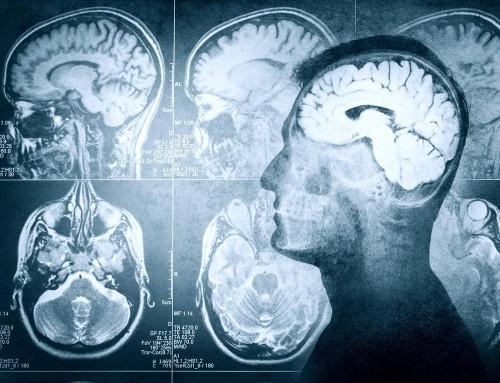 Inside the Science of False Memory